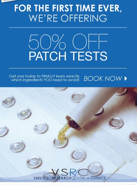 Patch tests are at half the price! WOW!